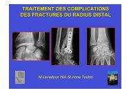 traitement des complications des fractures du radius ... - ClubOrtho.fr