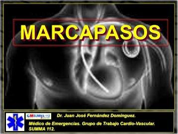 MARCAPASOS DISFUNCIONANTE. TIPOS DE ... - SEMM