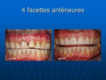 4 facettes antérieures - Art Dentaire Global