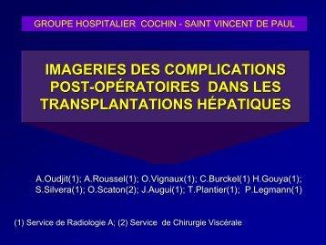 imageries des complications post-opératoires dans les ...