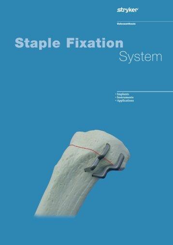 Staple Fixation System - Stryker
