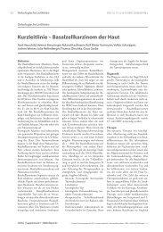 Kurzleitlinie – Basalzellkarzinom der Haut