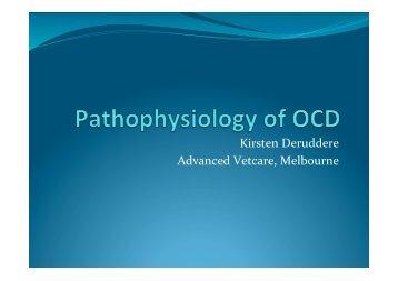 OCD presentation.pptx