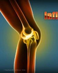 What to Expect If You Suspect Rheumatoid Arthritis - Igliving.com