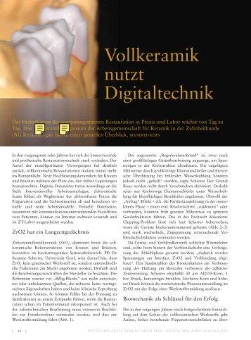 Vollkeramik nutzt Digitaltechnik - Arbeitsgemeinschaft Keramik