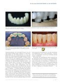 Vollkeramik nutzt Digitaltechnik - Arbeitsgemeinschaft Keramik - Seite 6