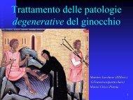 Trattamento delle patologie degenerative del ginocchio
