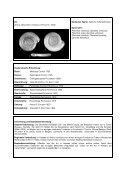 Anisus vorticulus - Landesbetrieb Hessen-Forst - Seite 2
