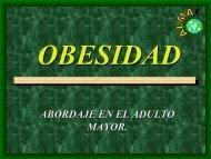 Obesidad. Ernesto Guevara Sierra