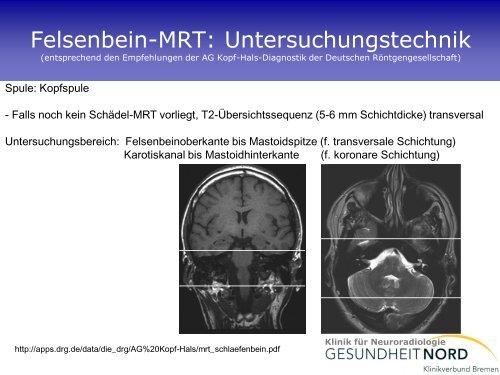 Neuroradiologische Diagnostik bei Demenzerkrankungen