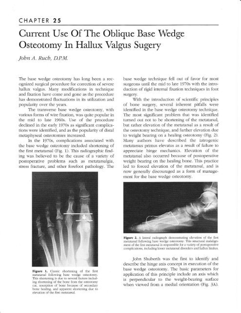 Current Use of the Oblique Base Wedge Osteotomy in Hallux