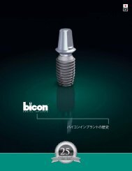 バイコンインプラントの歴史 - Bicon