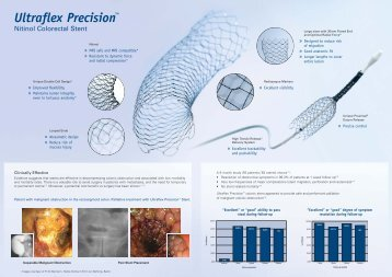 Ultraflex Precision