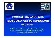 PARESI ISOLATA DEL MUSCOLO RETTO INFERIORE - E. Medea