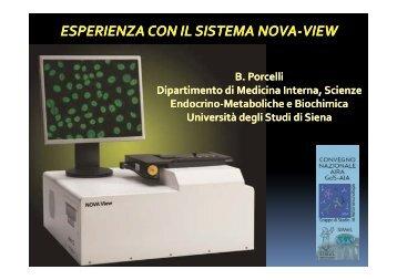 esperienza con il sistema esperienza con il sistema nova-view - Simel