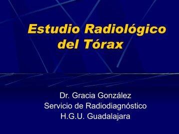 Estudio Radiológico del Tórax - VeoApuntes.com