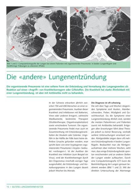 """Organisierende Pneumonie: die """"andere"""" Lungenentzündung - CHUV"""