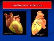 Cardiopatia ischemica - Medicina e chirurgia