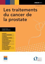 Les traitements du cancer de la prostate