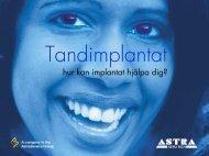 En-stegs kirurgi - Astra Tech