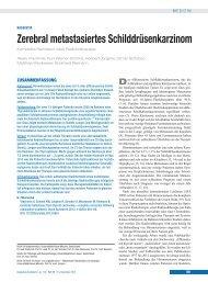 Zerebral metastasiertes Schilddrüsenkarzinom - Deutsches Ärzteblatt