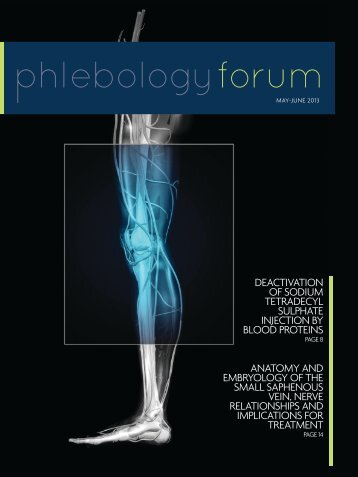 May-June 2013 Issue - American College of Phlebology
