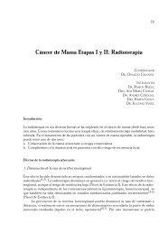 Cáncer de Mama Etapas I y II: Radioterapia