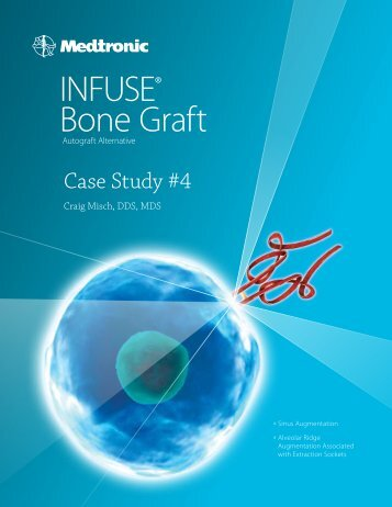 INFUSE® Bone Graft - BioHorizons