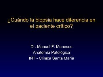 ¿Cuándo la biopsia hace diferencia en el paciente crítico?