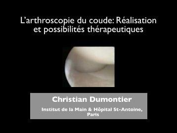 L'arthroscopie du coude: Réalisation et possibilités ... - ClubOrtho.fr