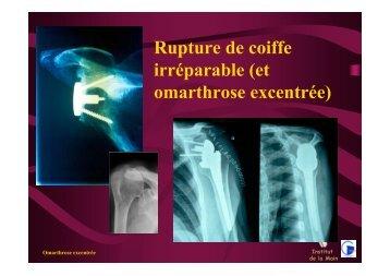 rupture coiffe irréparable DU - ClubOrtho.fr