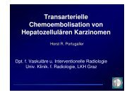 Transarterielle Chemoembolisation von Hepatozellulären Karzinomen