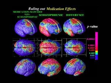 Esquizofrenia, imagen, investigación