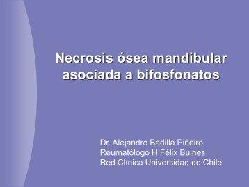 Necrosis ósea mandibular asociada a bifosfonatos