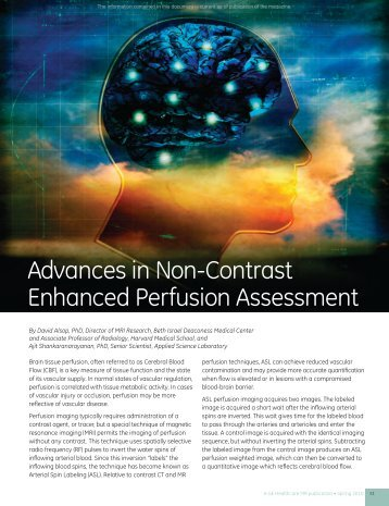 Advances in Non-contrast Enhanced Perfusion ... - GE Healthcare