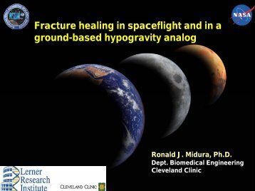 Fracture healing in spaceflight and in a ground-based hypogravity ...