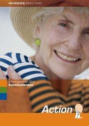 Patienten Broschüre Karotisstenose - Lebenswege Online