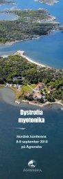 Dystrofia myotonika - Ågrenska