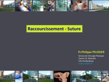 Raccourcissement - Suture - e-plastic.fr