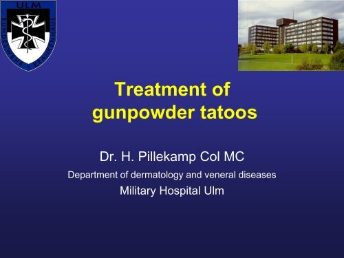 laser treatment of gunpowder tatoos - Bsbb