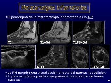 Patología de tobillo y pie