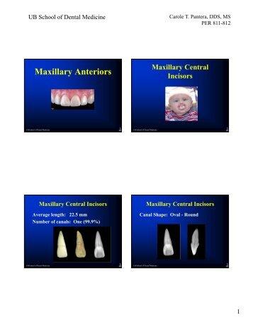 Maxillary Anteriors
