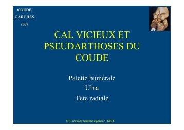 Cals vicieux et pseudarthrose - ClubOrtho.fr