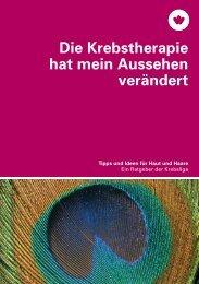 Die Krebstherapie hat mein Aussehen verändert - Krebsliga Schweiz