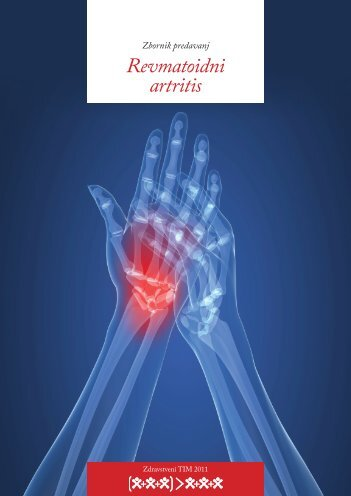 Revmatoidni artritis - Društvo študentov medicine Slovenije