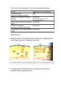 Tyrosinkinase- Rezeptoren - Seite 2