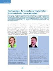 Hochwertiger Zahnersatz auf Implantaten - Zahnarztpraxis ...