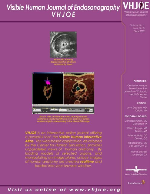 VHJOE Issue 3 - Visible Human Journal of Endoscopy