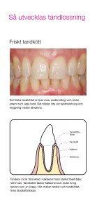 Tandköttsinflammation och tandlossning - TePe - Page 4