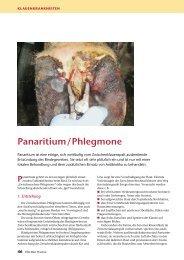 Panaritium/Phlegmone - Elite